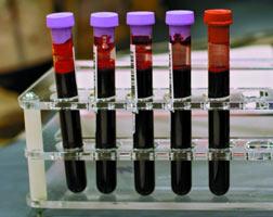 Golongan darah AB Sebaiknya Waspada, Karena Lebih Mungkin Terkena Demensia