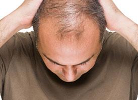 Pria yang Botak pada Usia 40-an tahun, Lebih Mungkin Terkena Kanker