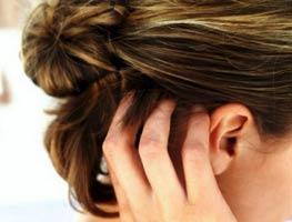 Tips Mengenali Penyebab, Penularan, dan Pencegahan Terjangkitnya Kutu di Rambut Kepala