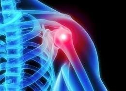Waspadailah Nyeri Pada Sendi, Ada Tanpa Bahaya Osteo-arthritis