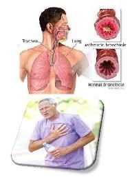 Cara Mudah Bagi Penderita Asma untuk Lebih Sehat